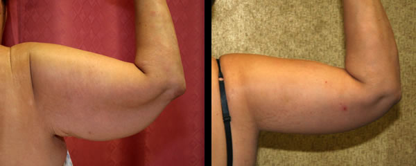 Scars From Upper Arm Lifts : Call us today for a free consultaton